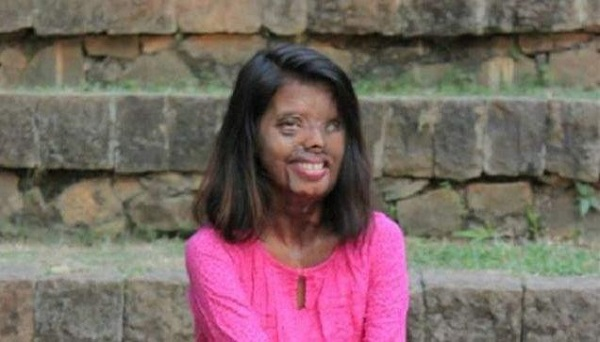 Anmol-who-survived-acid-attack-when-she-was-just-two-months